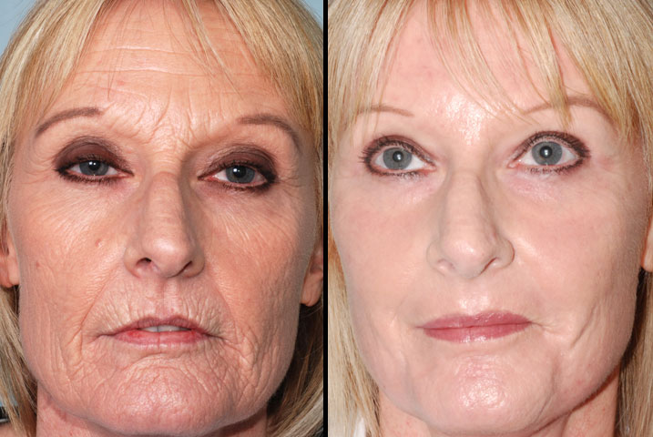Facial Resurfacing Before And After Girls Wild Party